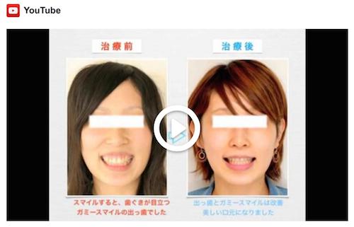 治療例 - 7:19歳 女性 出っ歯とガミースマイルの治療例